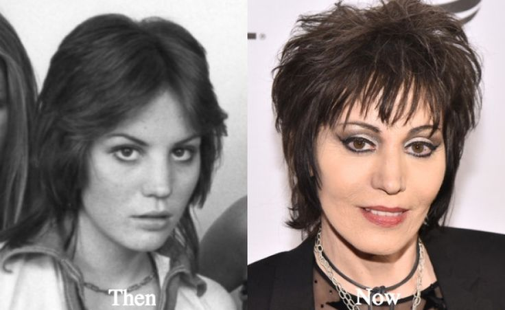Joan Jett Plastic Surgery joan jett plastic surgery before and after photos latest plastic joan jett plastic surgery before and after photos celebrity  joan jett plastic surgery joan jett plastic surgery joan jett latest plastic surgery photos
