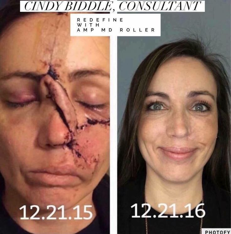 Here's Cindy's one-year anniversary photo following #skincancer surgery. Six months after her surgery, she started using #Redefine and the Redefine #AmpMDRoller, and then switched to #Reverse later in the year. Bless this beauty for sharing her journey. I couldn't be more proud to represent Rodan +Fields! This is just another example of why we call this #lifechangingskincare