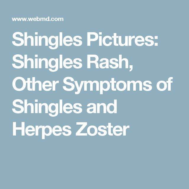 Shingles Pictures: Shingles Rash, Other Symptoms of Shingles and Herpes Zoster