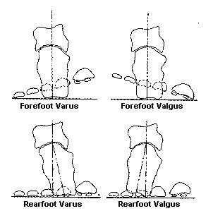 """www.health-gossip.com This image helps to understand what is forefoot varus and valgus and what is rearfoot varus and valgus.The thumb rule for valgus and varus in most joints of body is when distal part moves away from mid line and proximal part moves towards the midline its always valgus for exg; ankle joint moves away from midline and knee joint moves towards the midline is """"genu valgum"""" or knock knee another example is """"cubitus valgus""""; and the contrary is always varus for example knee…"""