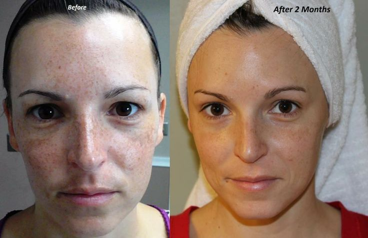 How to remove your freckles and dark spots! This is AMAZING!!! Reverse Treatment for freckles and dark spots. Rodan + Fields