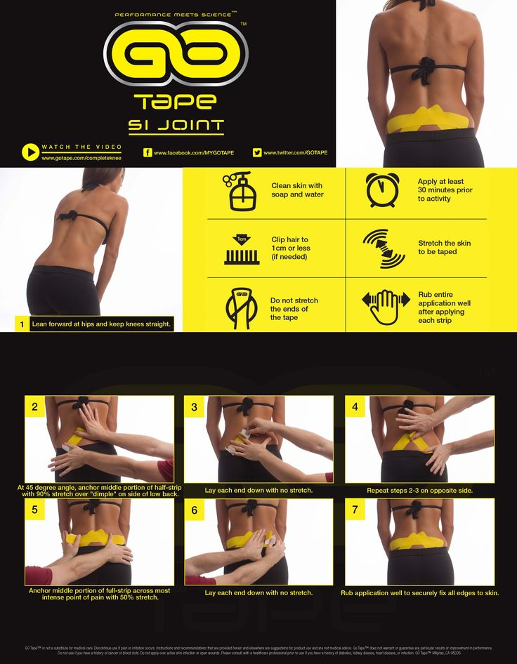 Simple kinesiology taping instructions for SI Joint