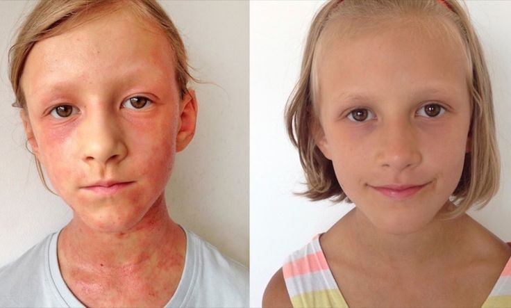 The Diet That Healed My Kids' Eczema (And Made My Whole Family Healthier)