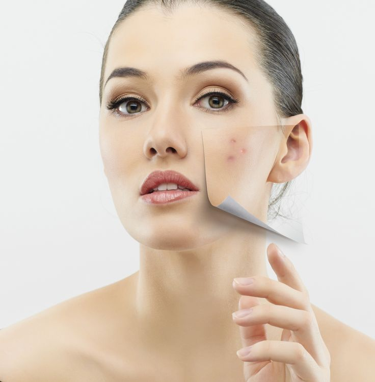 Are you dealing with ongoing acne issues?  We offer life-changing laser acne treatments for pimple free skin! Call: (587) 999-5906