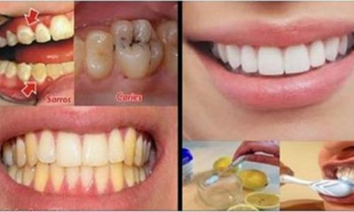 To prevent the appearance of cavities and tartar and to maintain the whiteness of the teeth it is important to have good oral hygiene.Thus brushing teeth daily at the rate of twice a day is essential to limit the development of dental problems.But not onl http://getfreecharcoaltoothpaste.tumblr.com