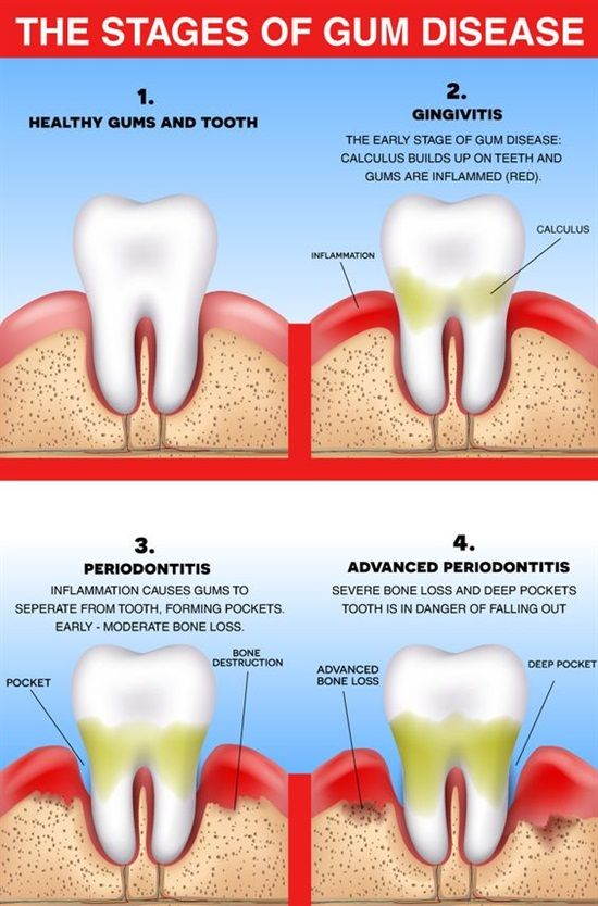 Dentaltown - Did you know there are different stages of gum disease?