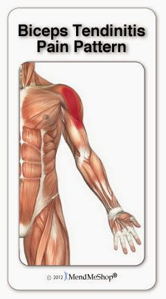 Biceps tendinitis, or bicipital tendinitis (also spelled tendonitis), is a painful condition that affects the fibres of the biceps brachii tendon. Tendinitis occurs when the biceps tendon experiences small tears, is irritated, and becomes inflamed. As tendonitis develops, the tendon shealth (covering) can become thicker due to the tough scar tissue that builds up during healing. This thickening makes the tendon less flexible and prone to further injury   Aidmyrotatorcuff.com