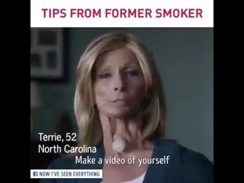This video is for smoker...(warning smoking causes throat cancer) - WATCH VIDEO HERE -> http://bestcancer.solutions/this-video-is-for-smoker-warning-smoking-causes-throat-cancer    *** how many years of smoking causes oral cancer ***   CigarSmoking CausesMouth AndThroat Cancer.Smokingcigars is associated with an increased risk of oralcancers, including the lips, tongue, mouth,throat,larynxand oesophagus. More than 80% ofcancersof the mouth, nose...