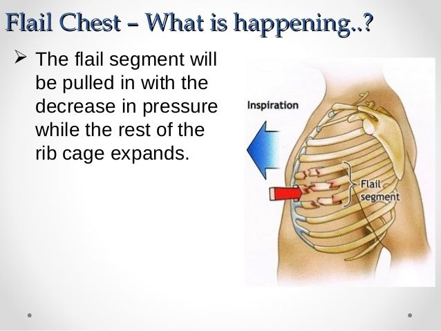 flail chest - - Yahoo Image Search Results