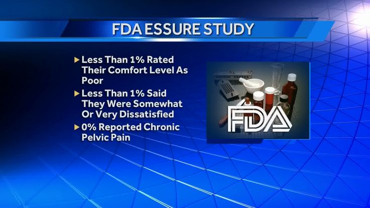 The U.S. Food and Drug Administration is responding to a Channel 4 Action News investigation into a controversial birth control procedure. Thousands of women around the country have complained about painful side effects from Essure, a permanent form of birth control. ***** DON'T BELIEVE THE FDA! THIS PRODUCT IS HARMING WOMEN ACROSS THE WORLD!