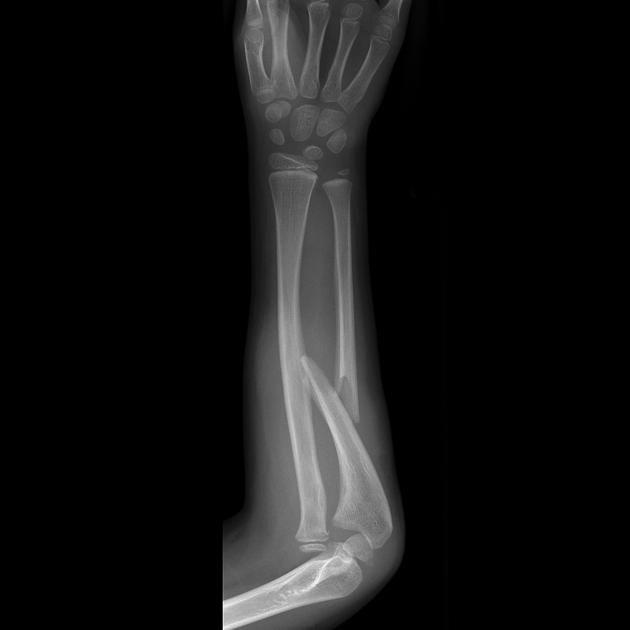 Monteggia fracture-dislocation | Radiology Case | Radiopaedia.org