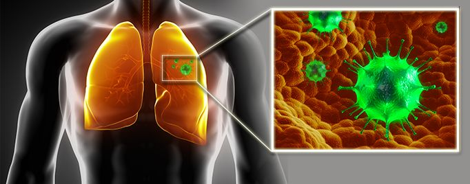 The U.S. Food and Drug Administration approved Gilotrif (afatinib) for patients with late stage (metastatic) non-small cell lung cancer (NSCLC) whose tumors express specific types of epidermal growth factor receptor (EGFR) gene mutations, as detected by an FDA-approved test.