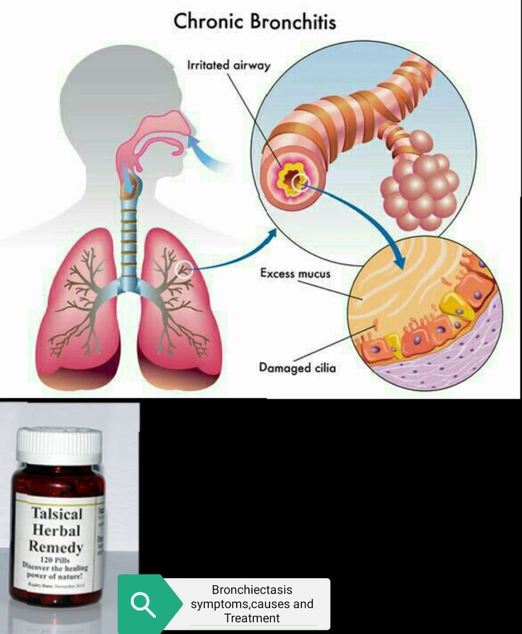 Bronchiectasis symptoms, causes and Treatment