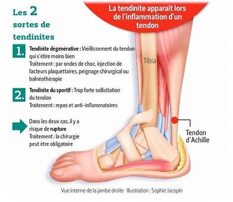Soigner une tendinite d'Achille - 42.2 histoires de running