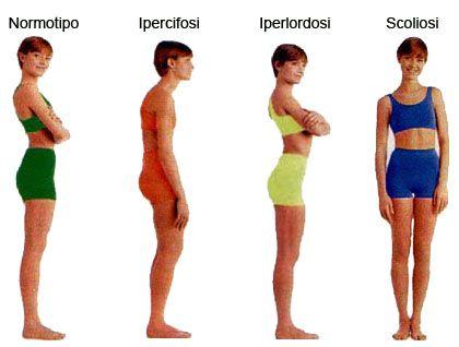 problemi di postura - Cerca con Google