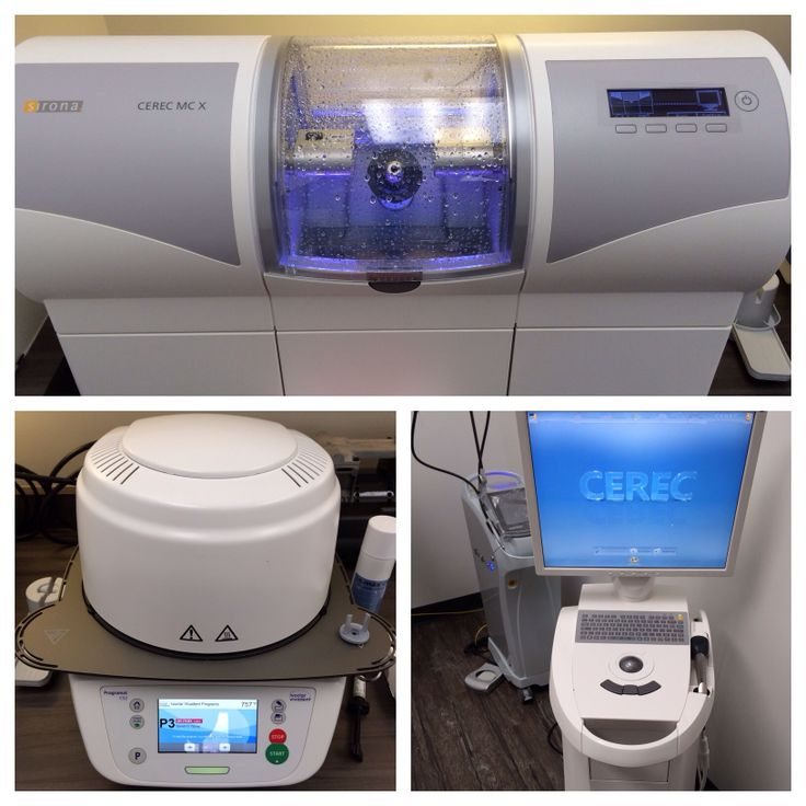Cerec. Modern dentistry. Emax crowns.
