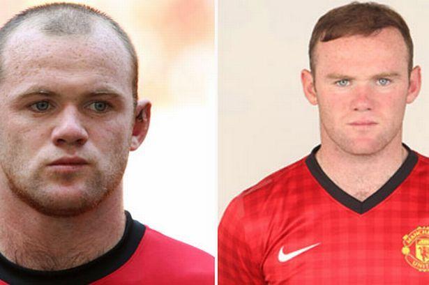Wayne Rooney - Celebrity Hair Transplants
