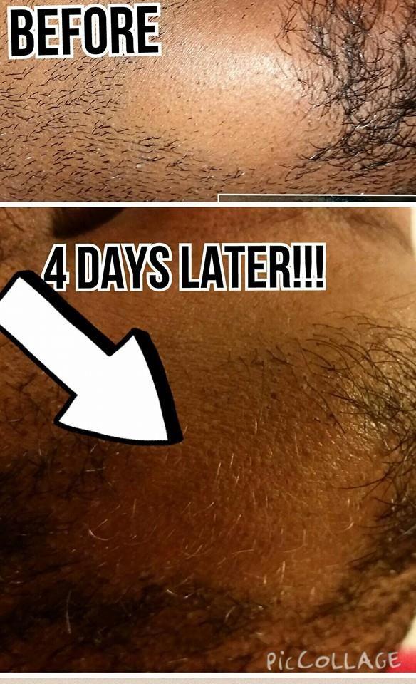 Beard Strengthening Gift Set