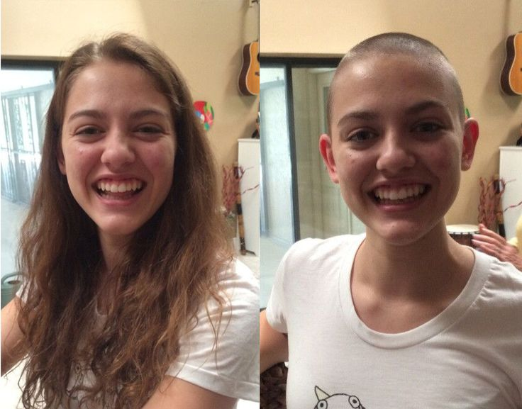 Consider, that shaved female heads before after