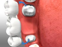 House Dental Centre offers dental bridges to patients in Red Deer, Alberta. Contact us today!