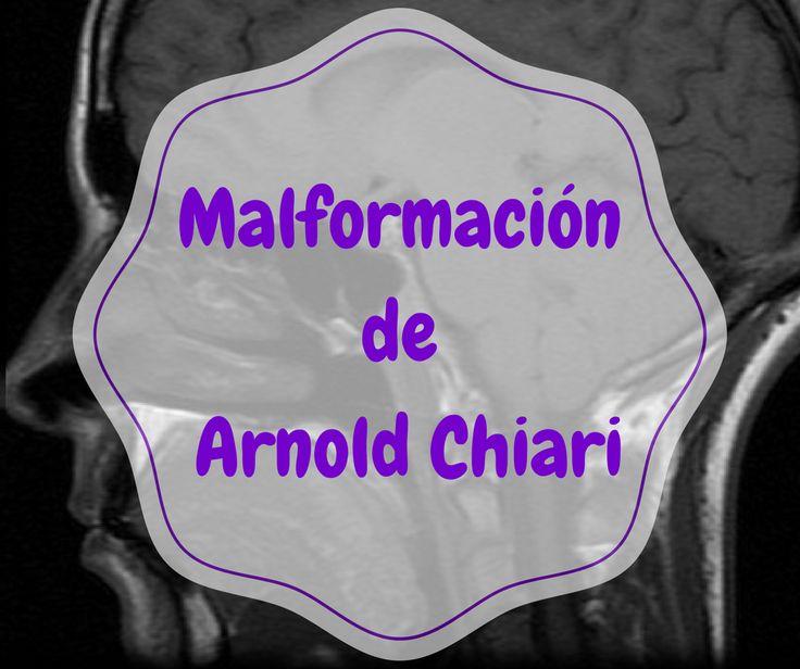 En éste espacio encontrarás toda la información sobre la malformación de Arnold Chiari y sus patologías asociadas.