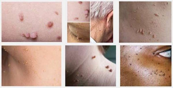 How To Naturally Eliminate Warts Moles Age Spots Skin Tags And Blackheadshttp://http://ift.tt/2DXYwlV