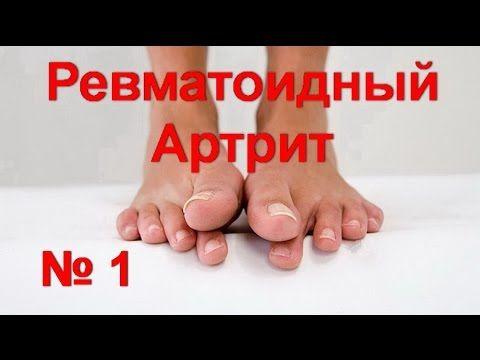 Ревматоидный артрит ! Деформация пальцев ног ! Как снять воспаление | #e...
