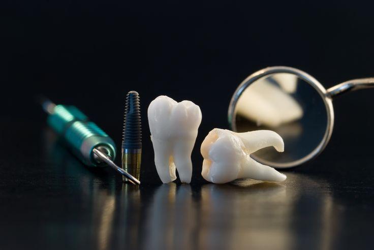 Fogászati implantátumok behelyezése : - egy -egy fog hiánya esetén - hátsó fogak elvesztésekor - teljes foghiány esetén www.fogpotlas.hu  tel:  +36 1 252 1421