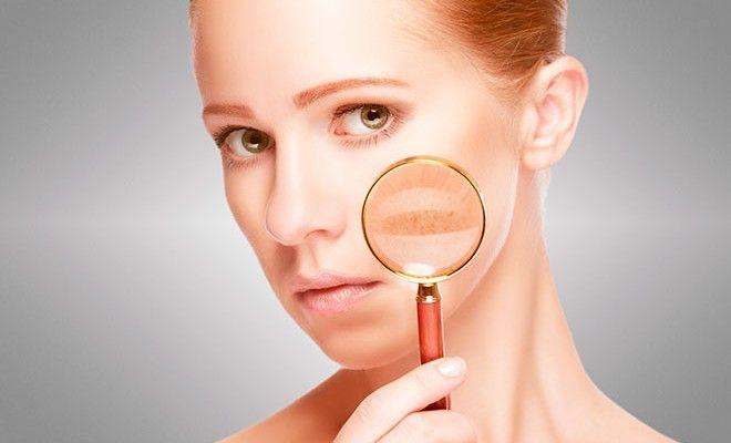Consejos para tratar las manchas en la #piel