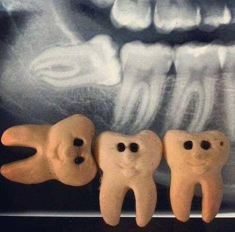 El tercer molar