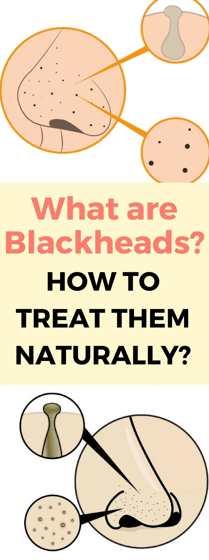 What are Blackheads and How to Treat Them Naturallyy.. Need to know..!?