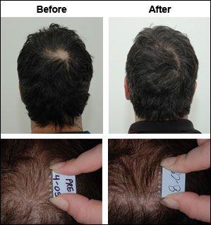 21 best images about hair restoration jeffrey paul salon
