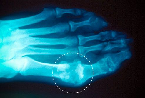 Gout: Causes, symptoms and treatment Gout is a common form of arthritis where crystals form in and around joints causing pain, swelling and redness.