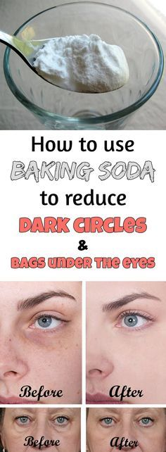 HOW TO USE BAKING SODA TO REDUCE DARK CIRCLES AND BAGS UNDER THE EYES