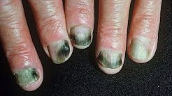 Nail fungus - worst nails & nail removaL http://toenailsfunguskiller.com/ - The best quality source relating to fingernail fungus treatment is most definitely this blog. Don't forget to check this specific website.