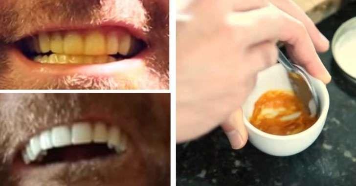 Enkelt triks for hvitere tenner - med bare tre ingredienser fra kjøkkenet