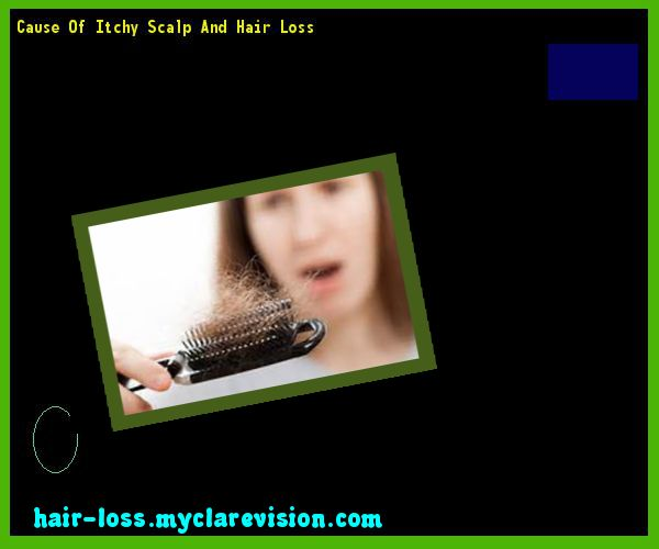 Cause Of Itchy Scalp And Hair Loss 125324 - Hair Loss Cure!