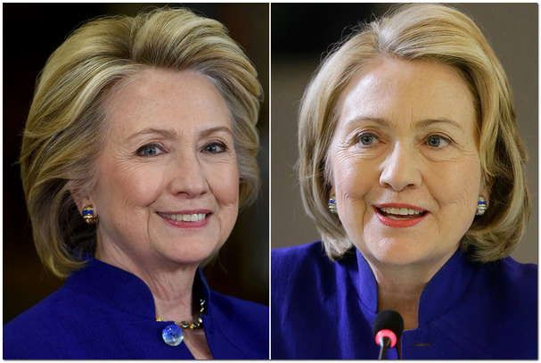 Has Hillary Clinton Had Plastic Surgery??