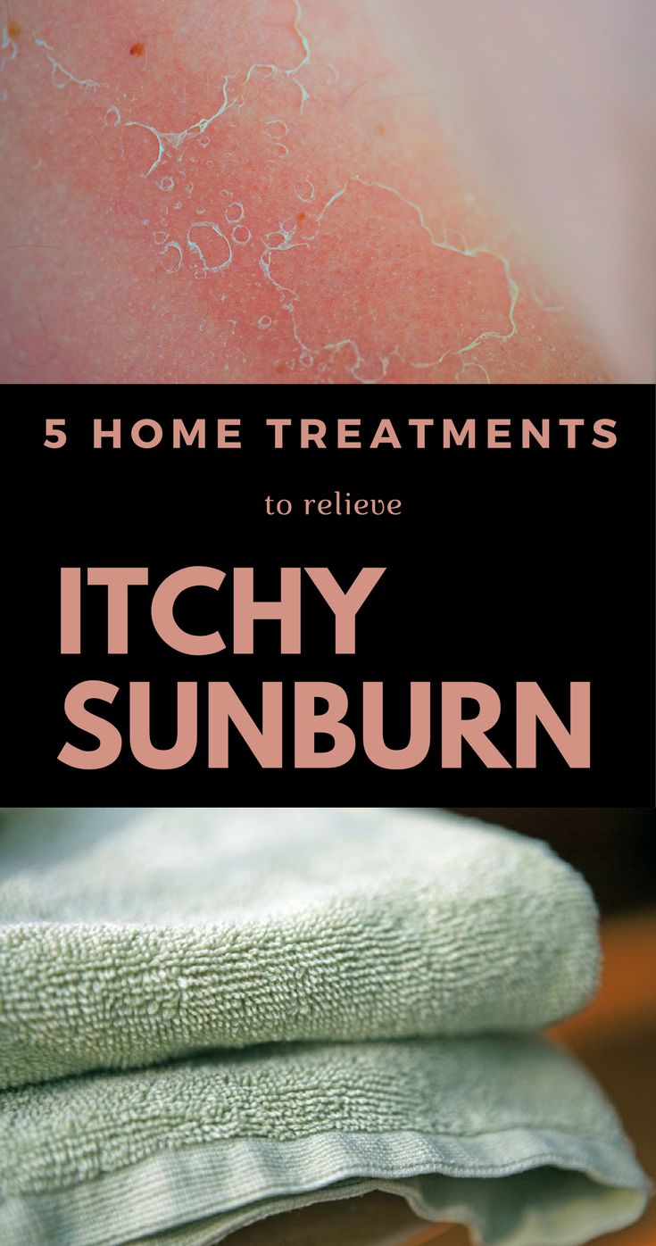 At-home treatments are the most effective for sunburn itch so keep reading and see what works for you.