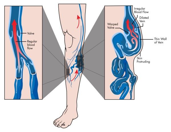 Vene varicose: 10 rimedi naturali per alleviare i sintomi e migliorare la circolazione