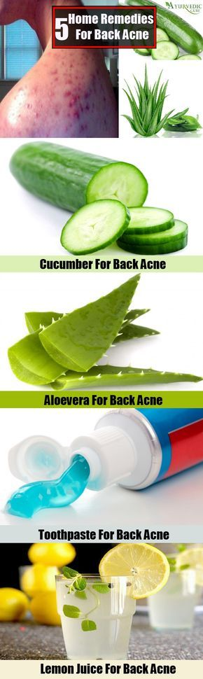 Effective Home Remedies For Back Acne
