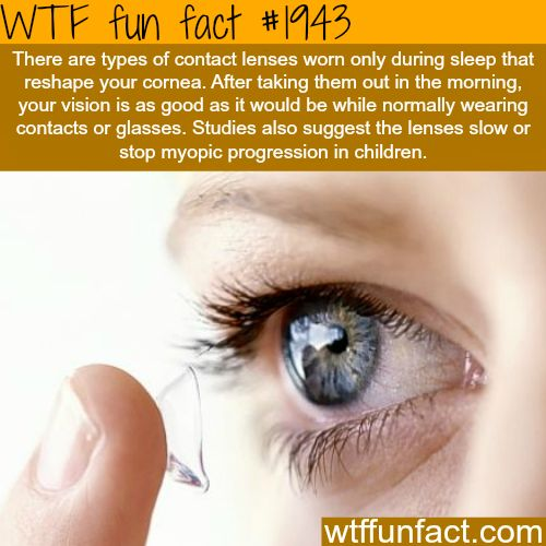 #1943 - There are types of contact lenses worn only during sleep that reshape your cornea. After taking them out in the morning, your vision is as good as it would be while normally wearing contacts or glasses. Studies also suggest the lenses slow or stop myopic progression in children