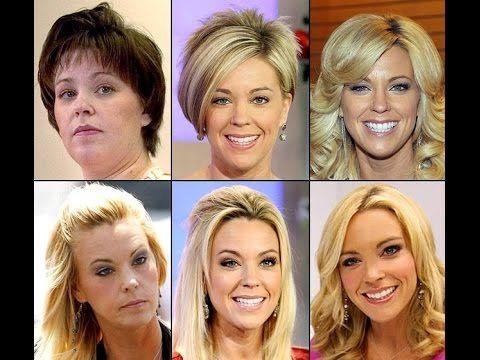 Kate Gosselin Plastic Surgery Before and After - GossipMagazines.net #kategosselin