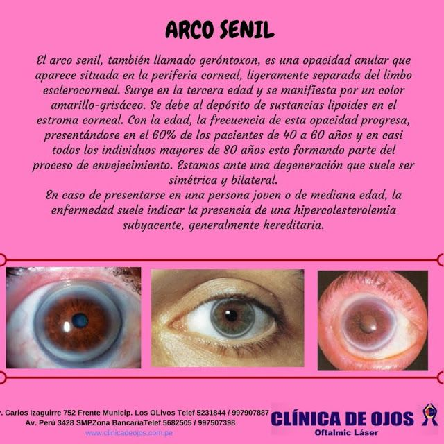 Clínica de Ojos Oftalmic Láser: ARCO SENIL