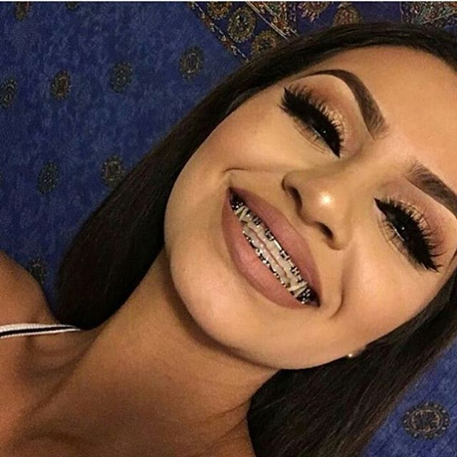 Instagram media by hotline.vogue - Girls who wear braces are cute or nah? …