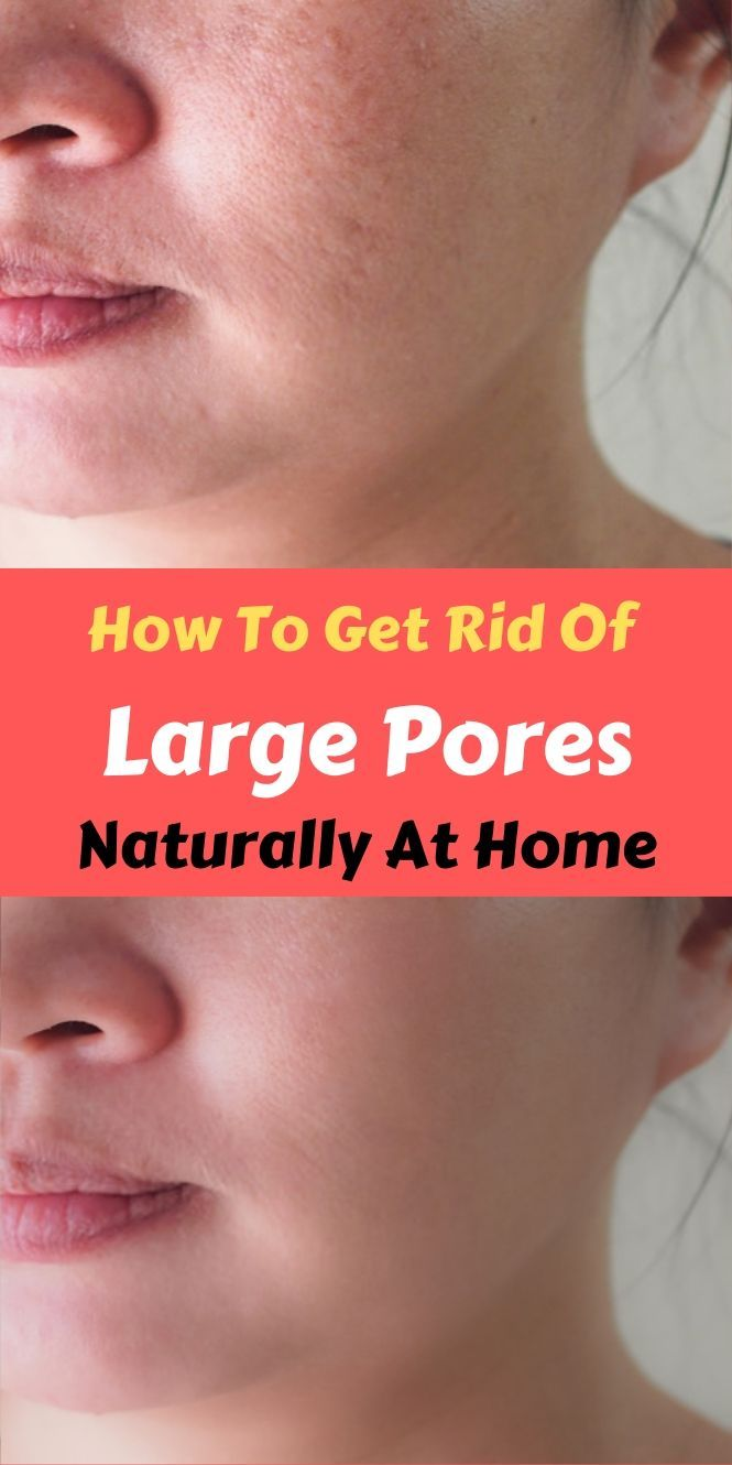 How To Get Rid Of Large Pores Naturally At Home In 2020 Open Pores On Face Large Pores Face Pores