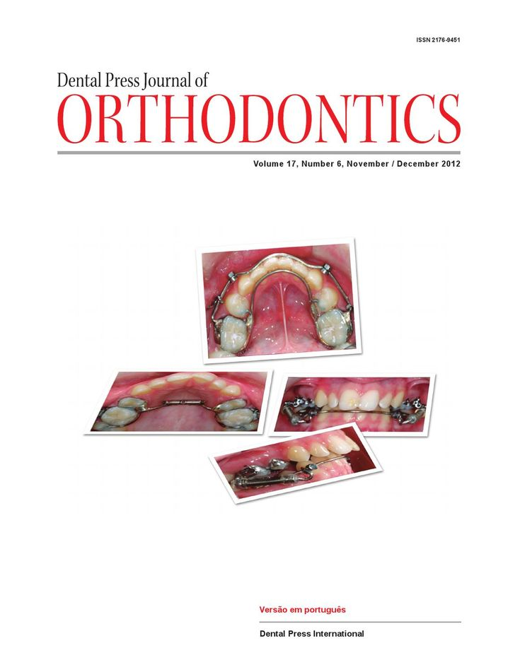 Revista Dental Press Journal Of Ortodontics - PT