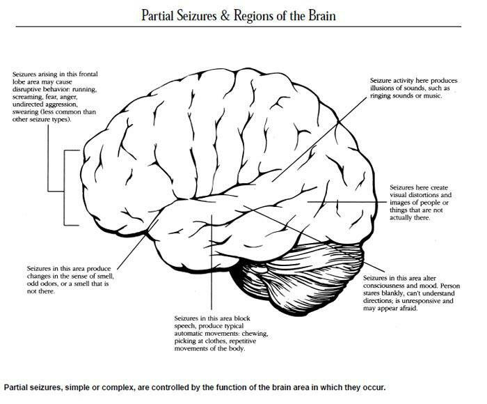 Complex Partial seizures http://www.epilepsy.com/learn/types-seizures/focal-onset-impaired-awareness-seizures-aka-complex-partial-seizures