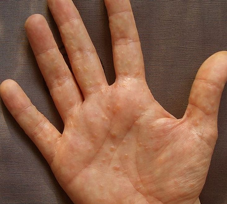 dyshidrotic eczema pictures 4