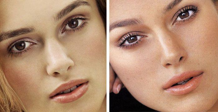 Keira Knightley Nose Job Plastic Surgery Pictures Rhinoplasty Surgeon